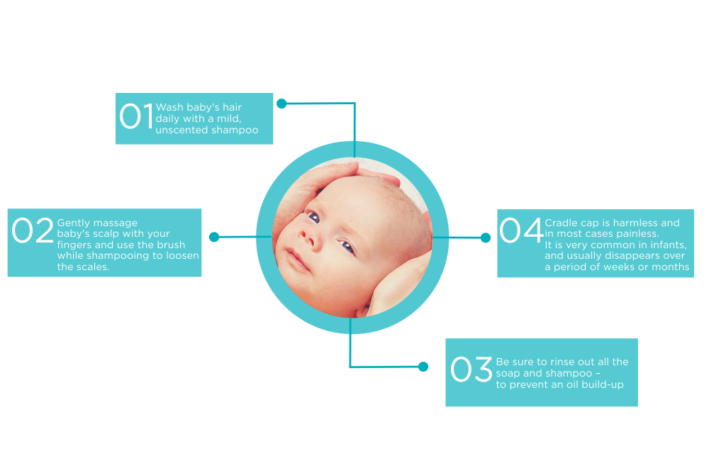 How To Care For Cradle Cap Baby Amp Kids
